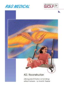 thumbnail of N_Rekonstrukciya-svyazok-kolennogo-sustava—broshyura-s-opisaniem-metodiki[1]
