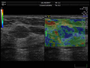 evaluation-of-breast-lesion-full[1]